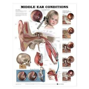 Ear Anatomy Chart   Middle Ear Conditions: Industrial